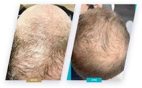 Hairstim  – efekty – cena  - apteka
