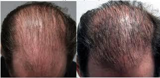 Hairstim - na wypadnie włosów – allegro – sklep - skład